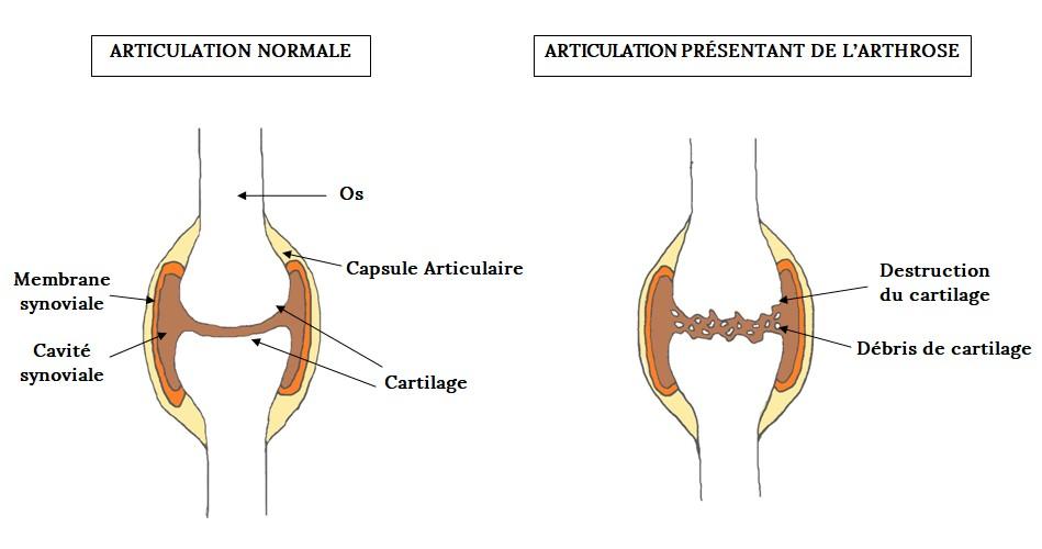 Articulation saine VS Articulation avec arthrose